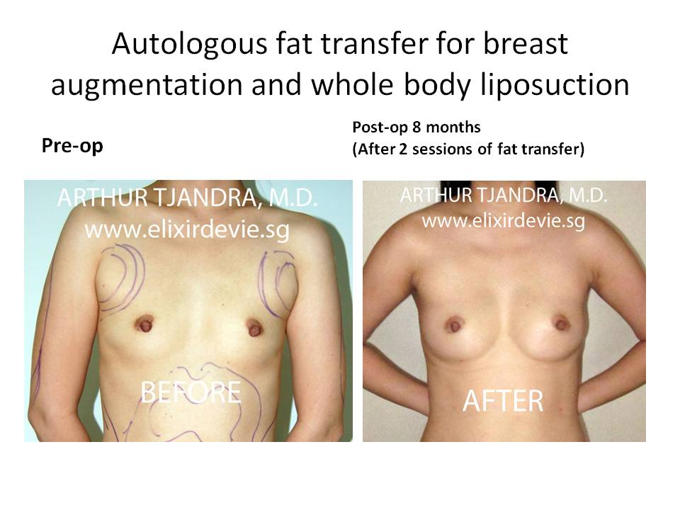 Breast Fat Transfer Worth it? Reviews, Cost, Pictures