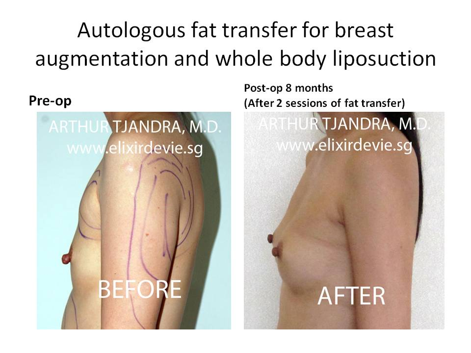 Autologous Fat Transfer - Cosmetic Surgery & Cosmetic
