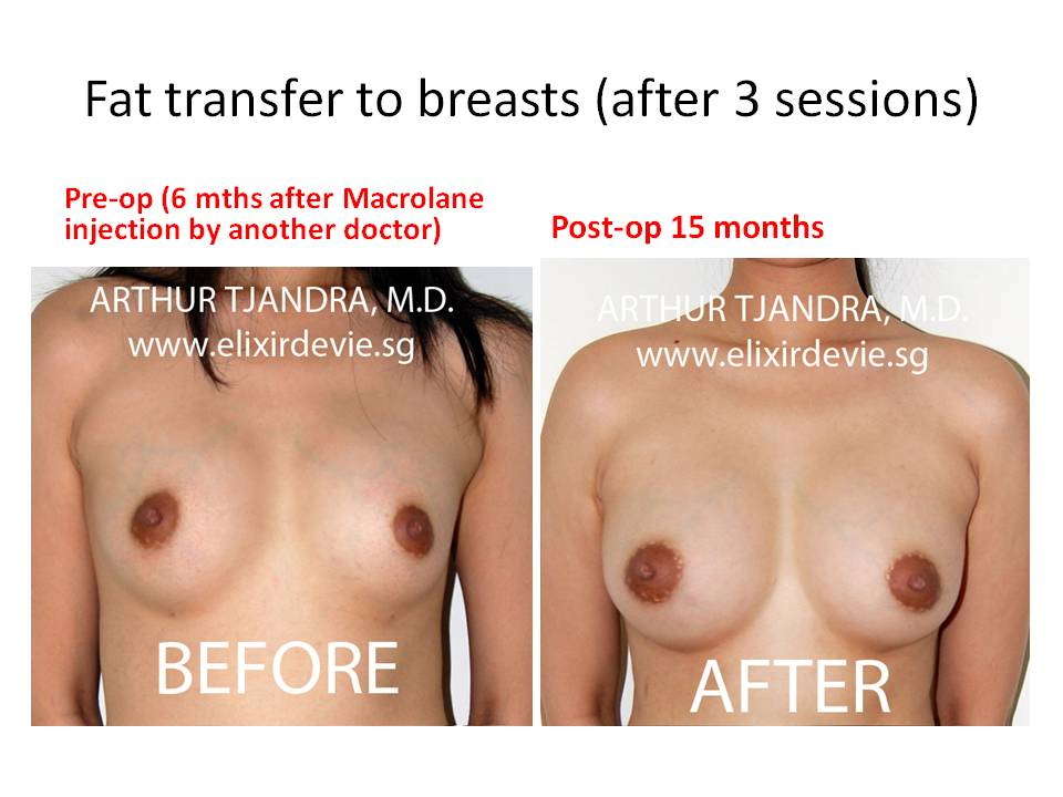Fat Transfer Breast Augmentation: 6 Reasons to Think