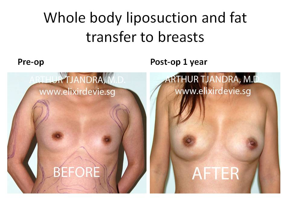 Fat Grafting - Breast Cancer Information and Awareness